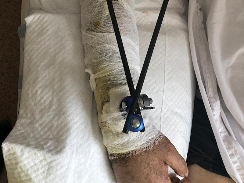 Раздробленную руку восстановили парню шымкентские врачи
