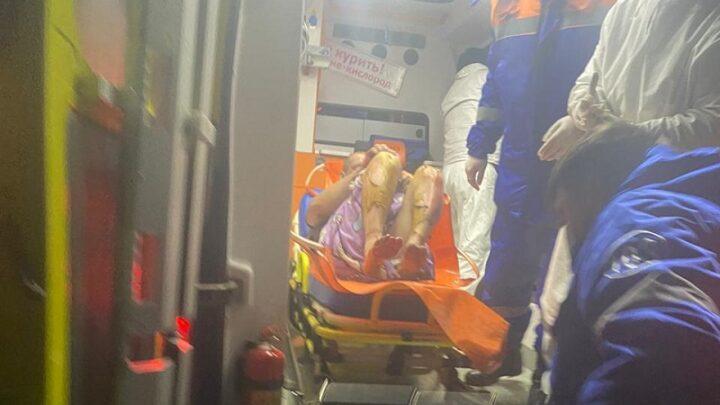47% ожогов тела получил житель Шымкента при пожаре